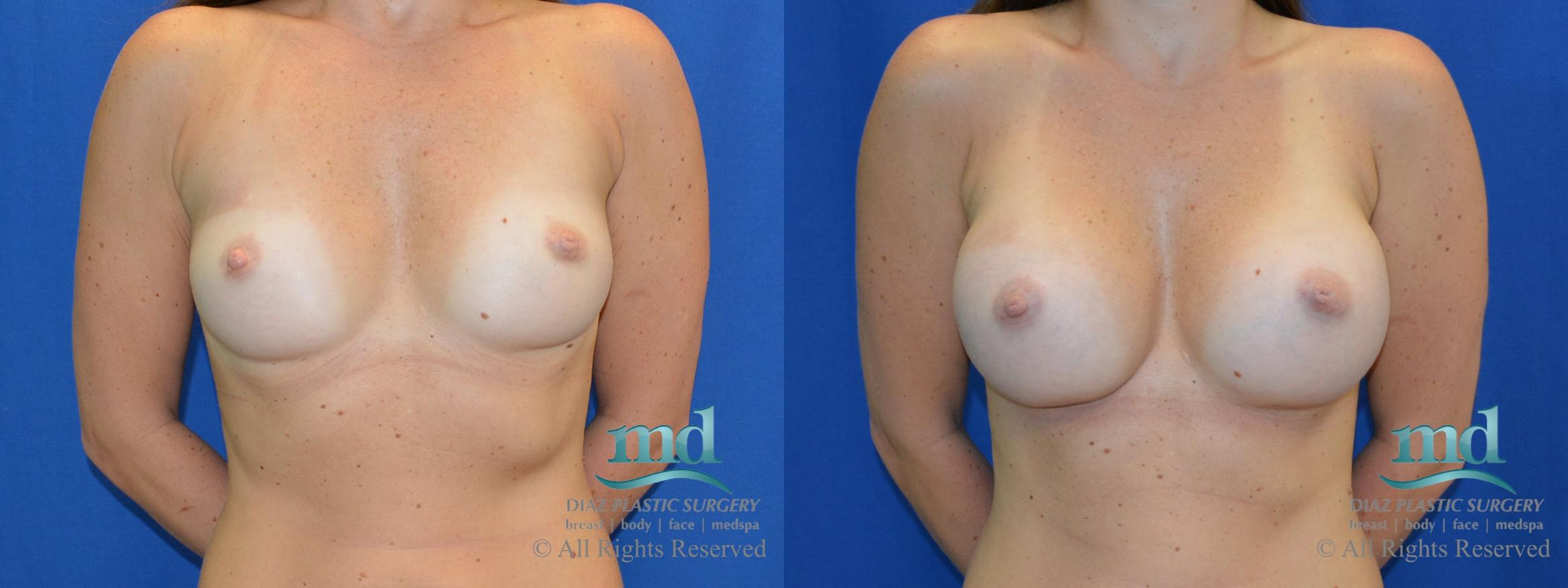 Breast Augmentation Case 43 Before & After View #1 | Melbourne, FL | Michael Diaz, M.D