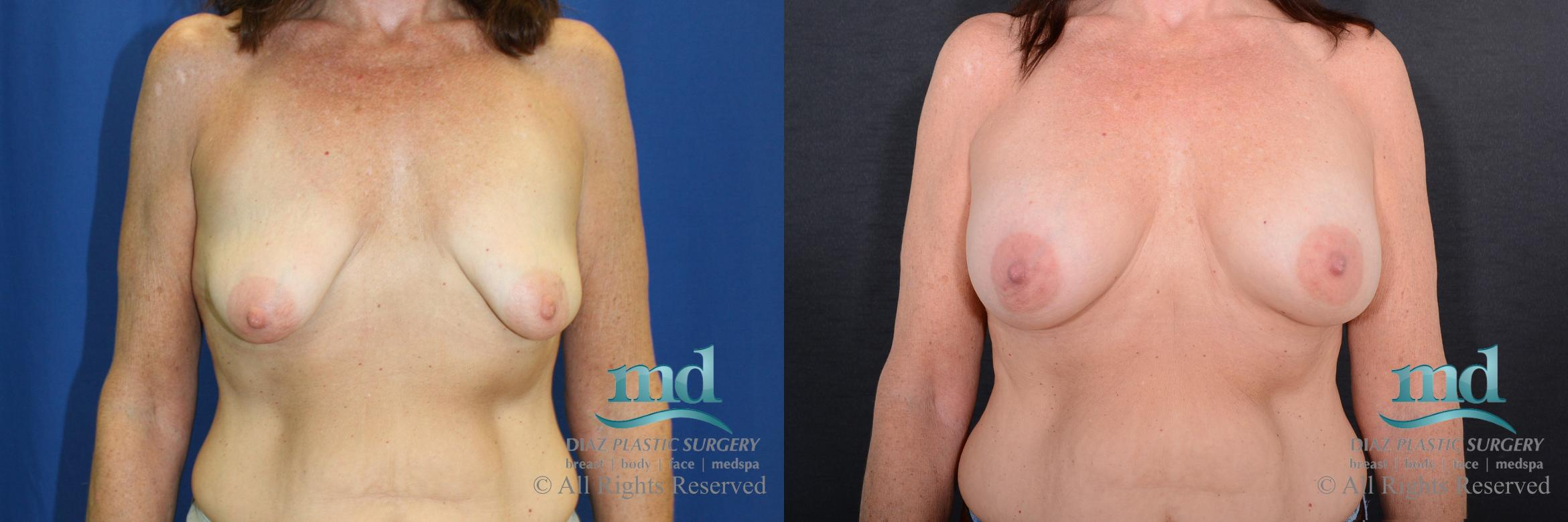 Breast Augmentation Case 65 Before & After View #1 | Melbourne, FL | Michael Diaz, M.D