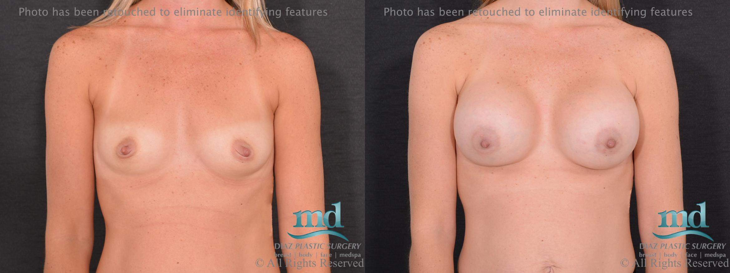 Breast Augmentation Case 67 Before & After View #1 | Melbourne, FL | Michael Diaz, M.D