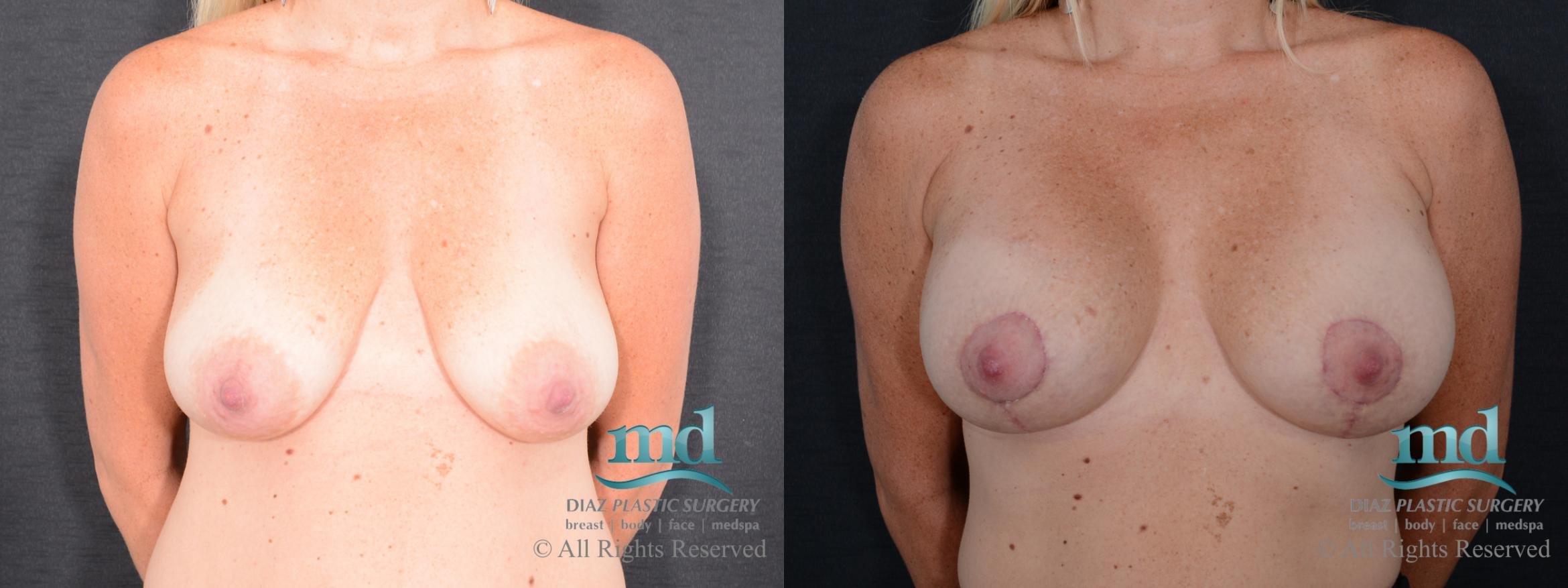 Breast Lift Case 127 Before & After View #1 | Melbourne, FL | Michael Diaz, M.D