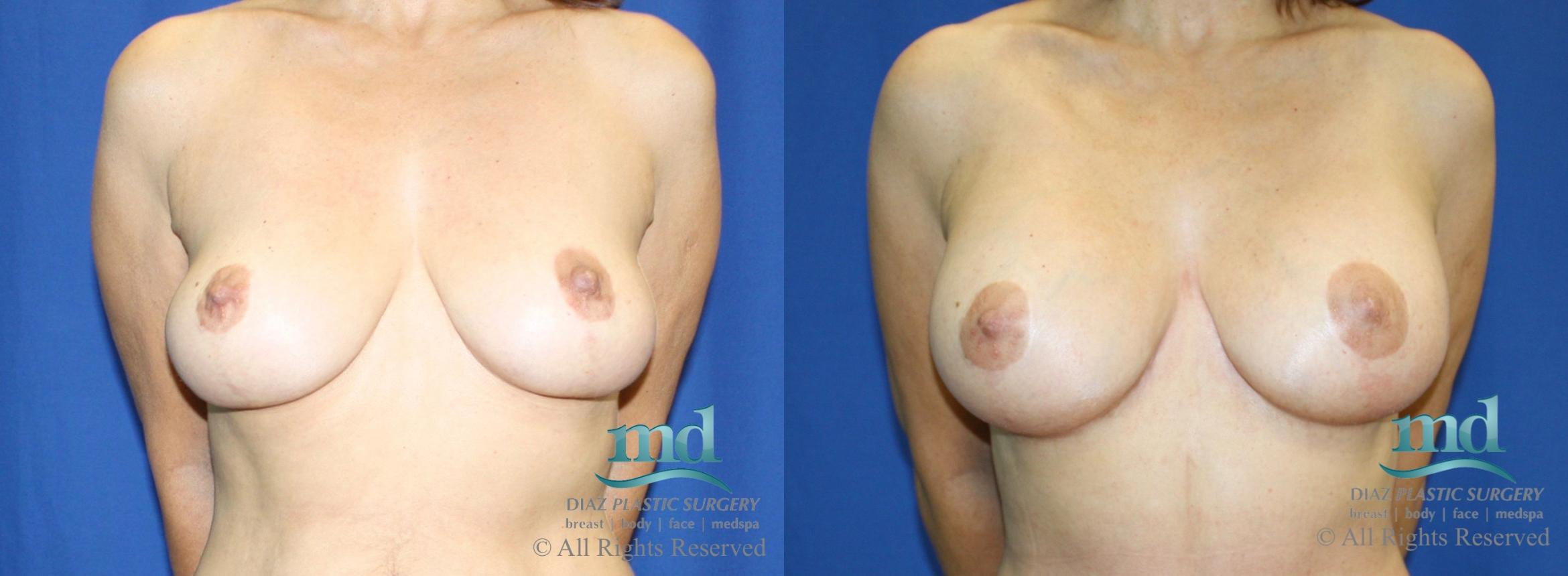 Breast Lift Case 28 Before & After View #1 | Melbourne, FL | Michael Diaz, M.D