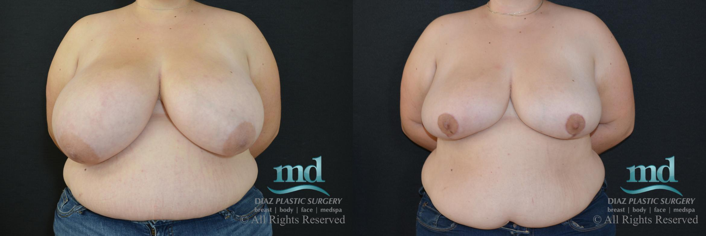 Breast Reduction Case 132 Before & After View #1 | Melbourne, FL | Michael Diaz, M.D