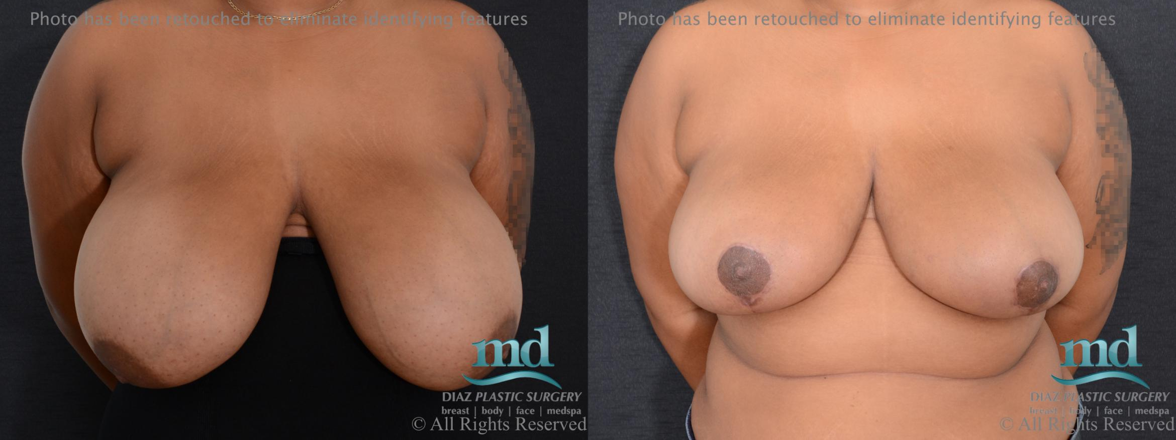 Breast Reduction Case 133 Before & After View #1 | Melbourne, FL | Michael Diaz, M.D