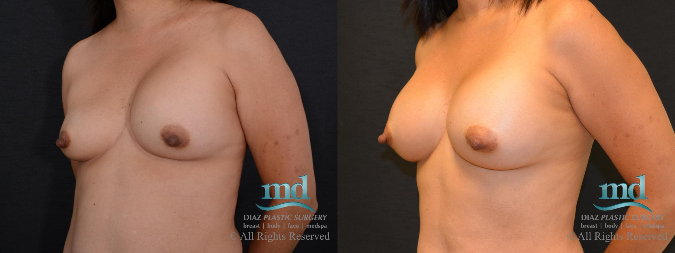 Breast Revision Case 104 Before & After View #2 | Melbourne, FL | Michael Diaz, M.D