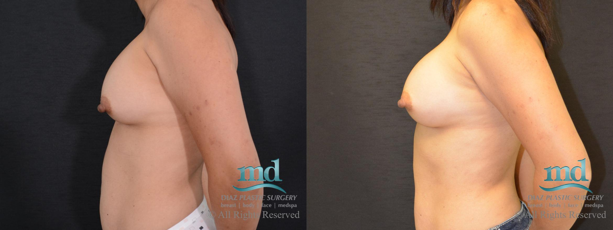 Breast Revision Case 104 Before & After View #3 | Melbourne, FL | Michael Diaz, M.D