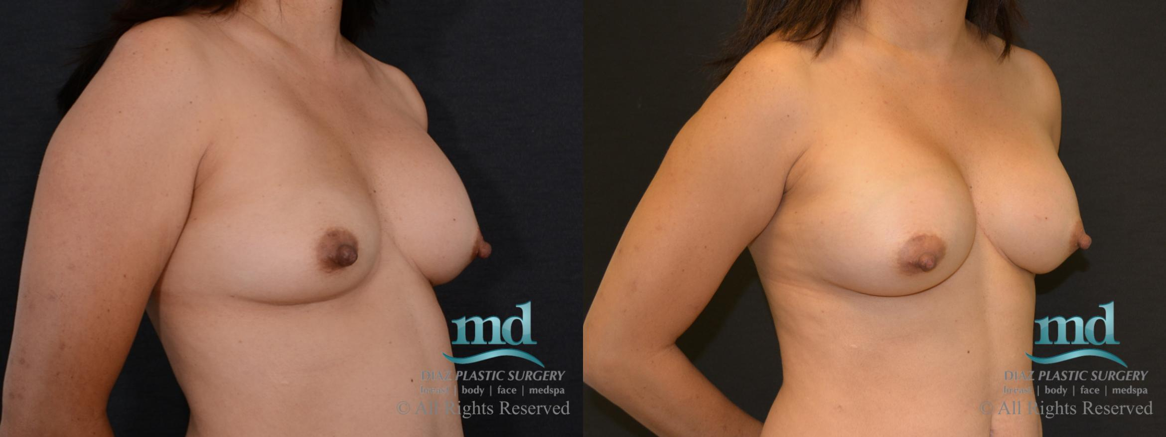 Breast Revision Case 104 Before & After View #4 | Melbourne, FL | Michael Diaz, M.D