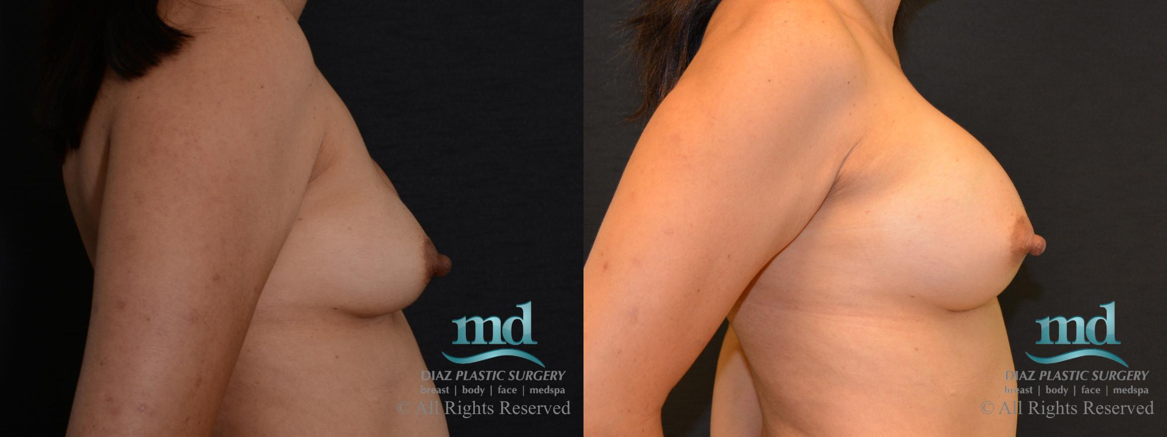 Breast Revision Case 104 Before & After View #5 | Melbourne, FL | Michael Diaz, M.D