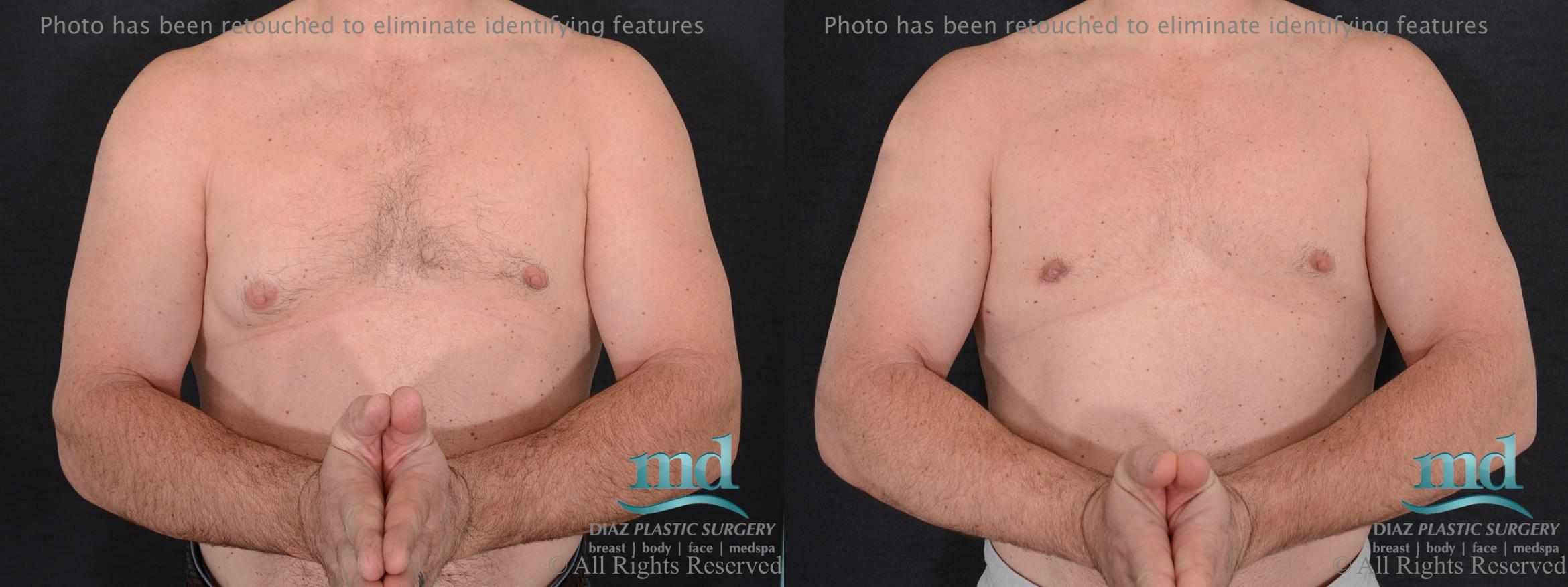 Gynecomastia Case 113 Before & After View #1 | Melbourne, FL | Michael Diaz, M.D