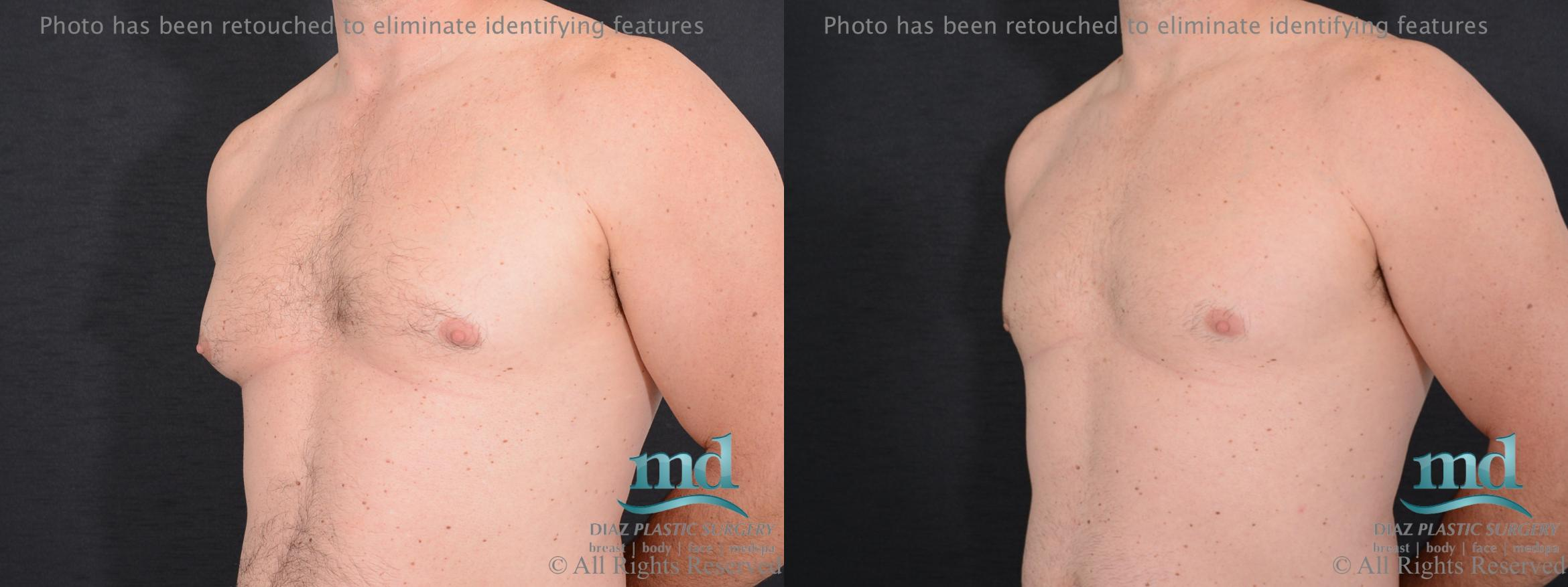 Gynecomastia Case 113 Before & After View #2 | Melbourne, FL | Michael Diaz, M.D