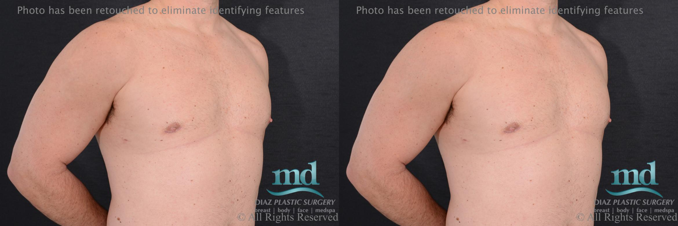 Gynecomastia Case 113 Before & After View #4 | Melbourne, FL | Michael Diaz, M.D