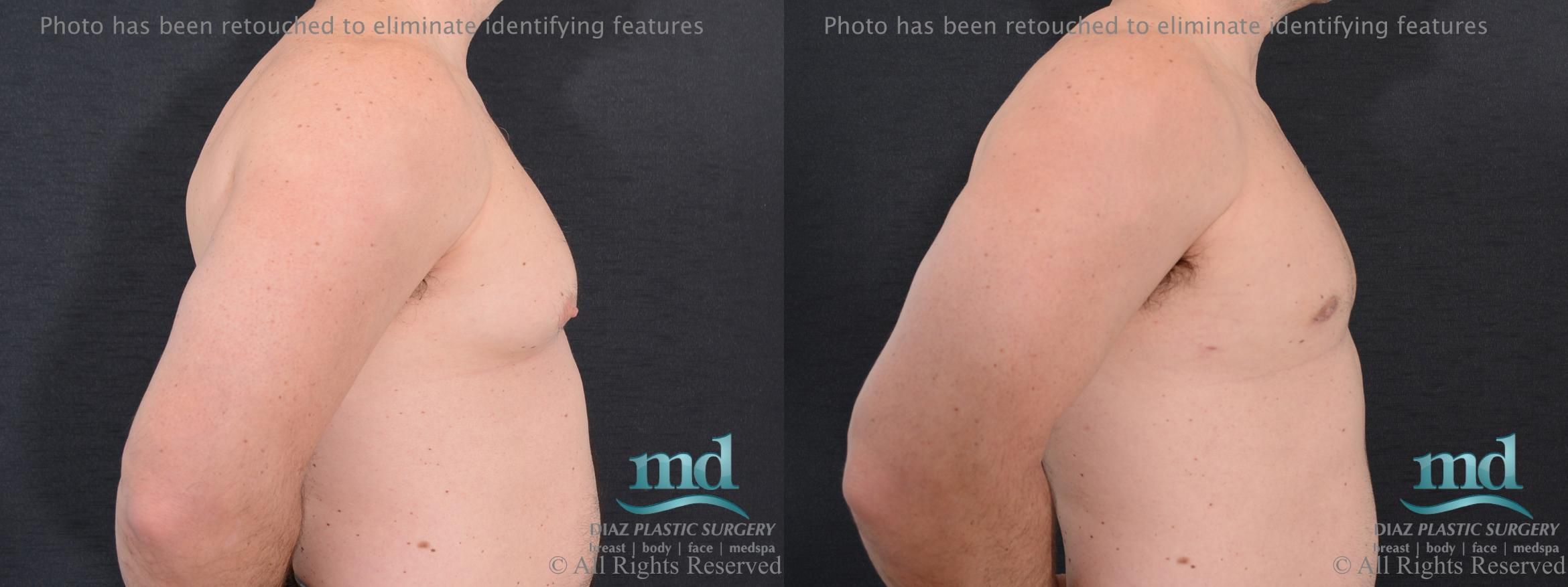 Gynecomastia Case 113 Before & After View #5 | Melbourne, FL | Michael Diaz, M.D