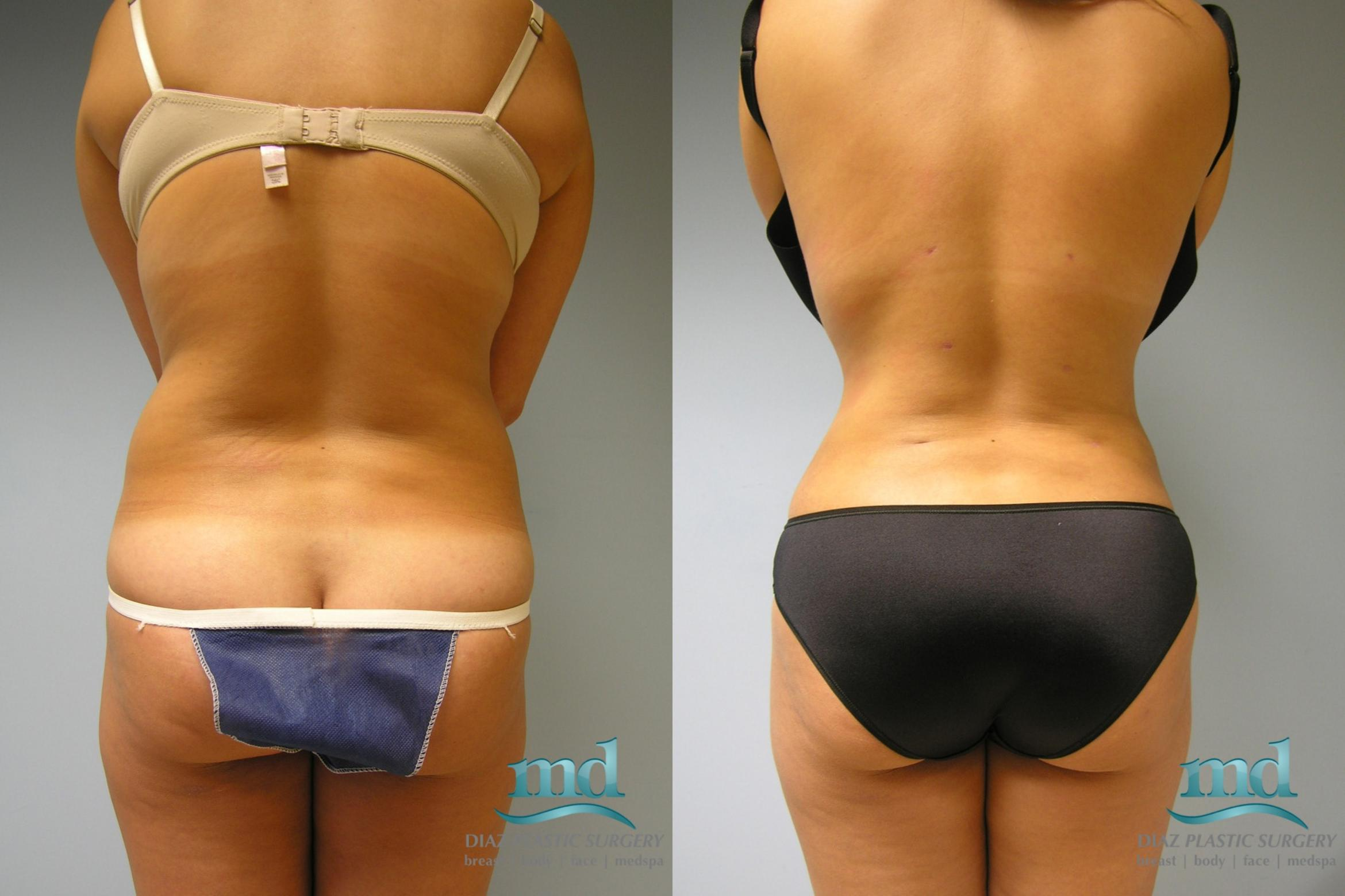 Liposuction Case 10 Before & After View #1 | Melbourne, FL | Michael Diaz, M.D
