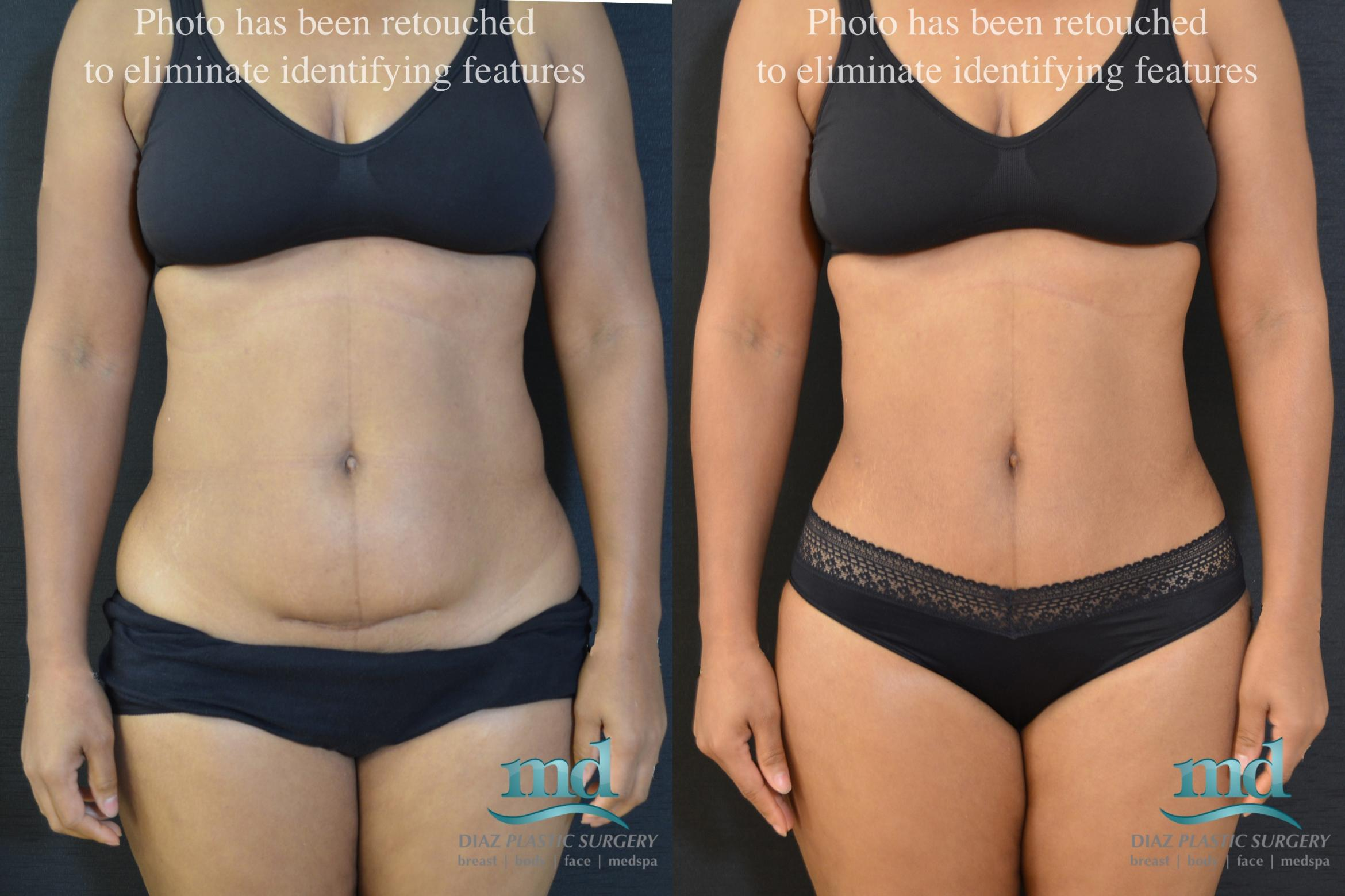 Mini Tummy Tuck Case 19 Before & After View #1 | Melbourne, FL | Michael Diaz, M.D