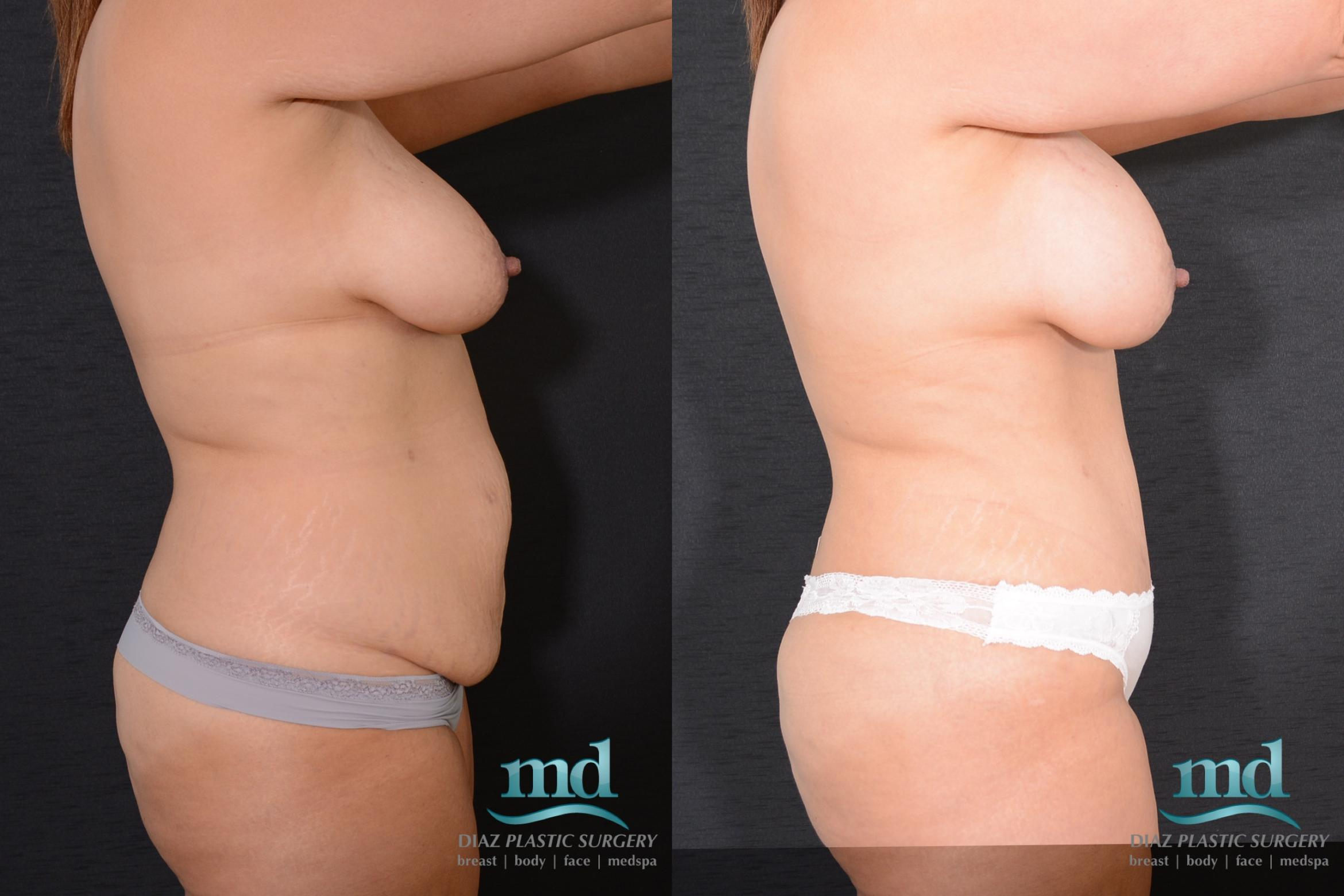 Surgery After Massive Weight Loss Case 16 Before & After View #4 | Melbourne, FL | Michael Diaz, M.D