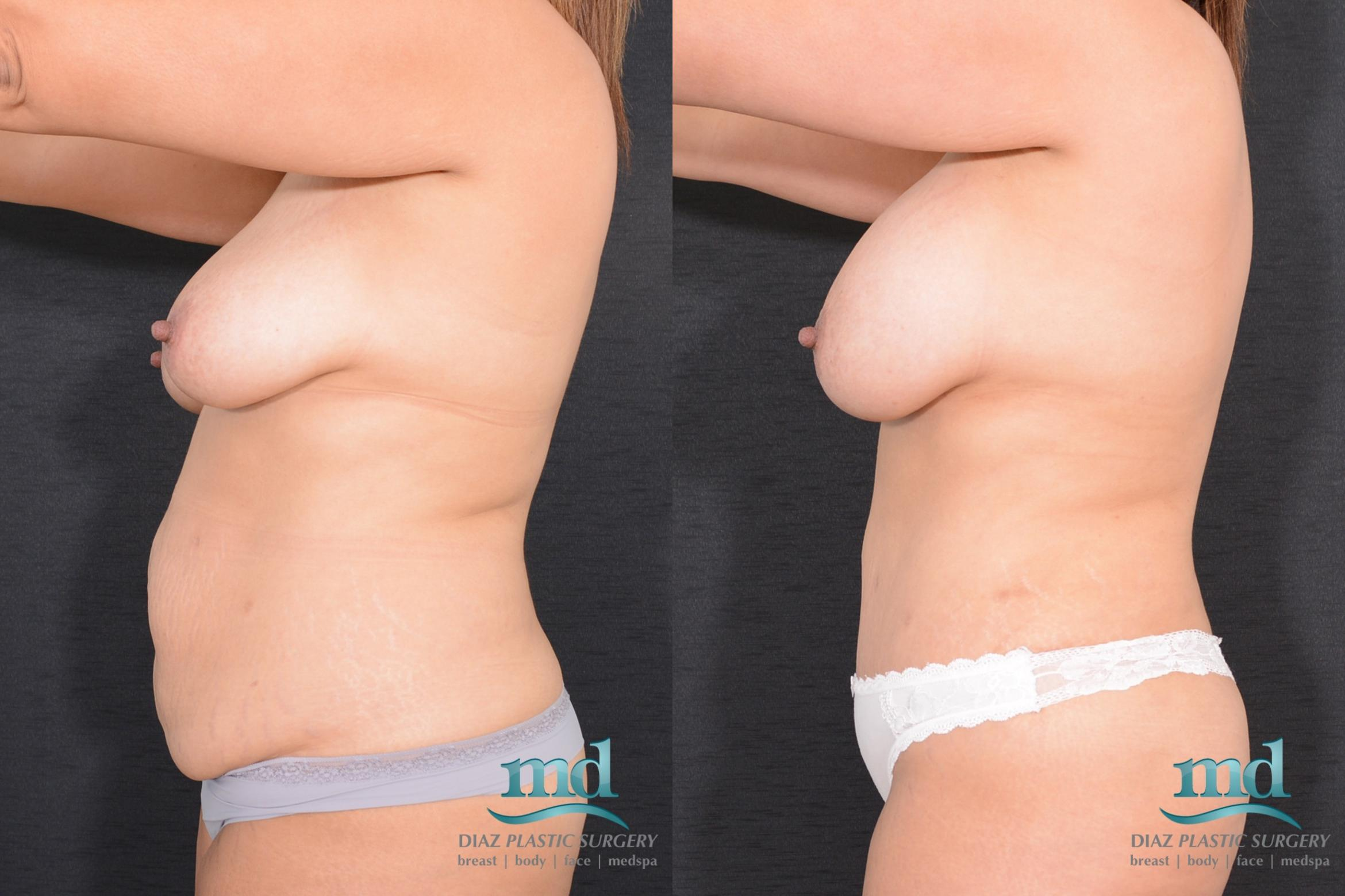 Surgery After Massive Weight Loss Case 16 Before & After View #8 | Melbourne, FL | Michael Diaz, M.D